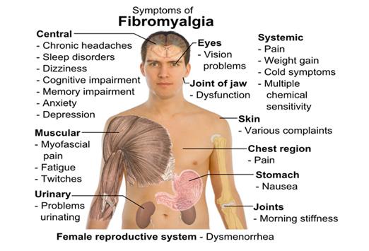 fibromyalgia-symptom-graphic